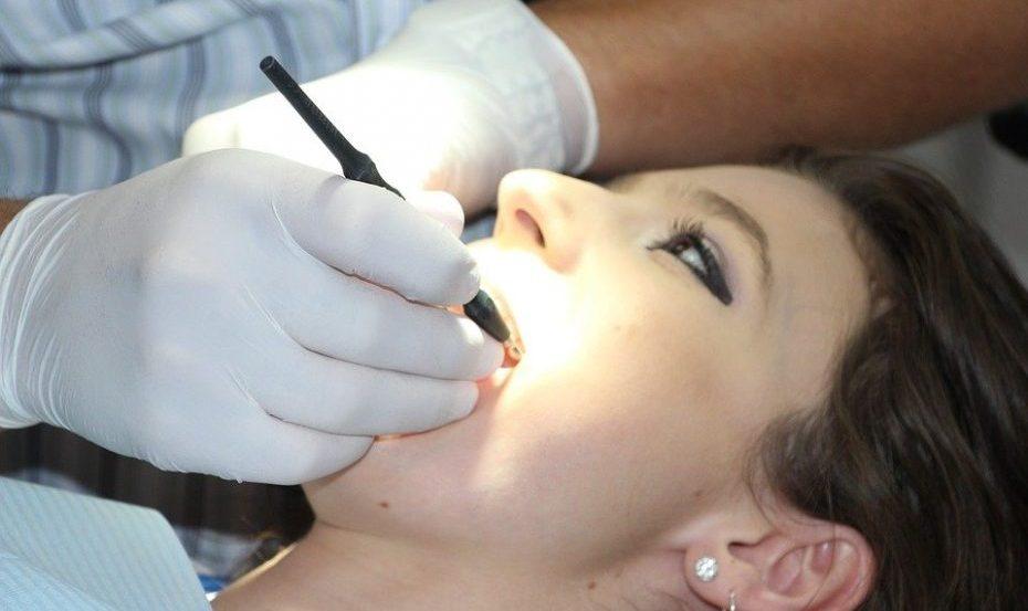 Les facettes dentaires : ce qu'elles sont et quelles sont les options